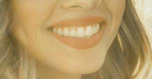 implantes dentales doctor toledo