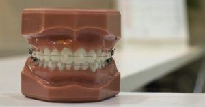 ortodoncia doctor toledo
