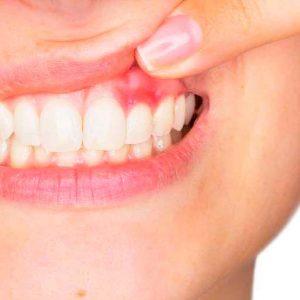 encias gingivitis
