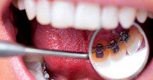 ortodoncia invisibles