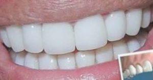 Carillas y fundas dentales