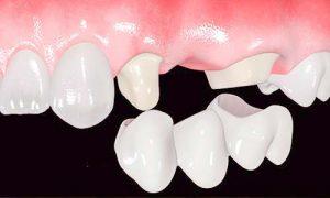 Cuál es la diferencia entre puente dental e implante
