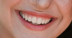 Implantes dentales rechazo